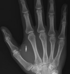 hand and microchip